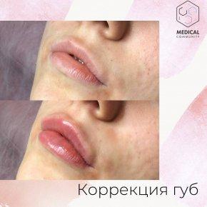 Эстетическая коррекция губ от